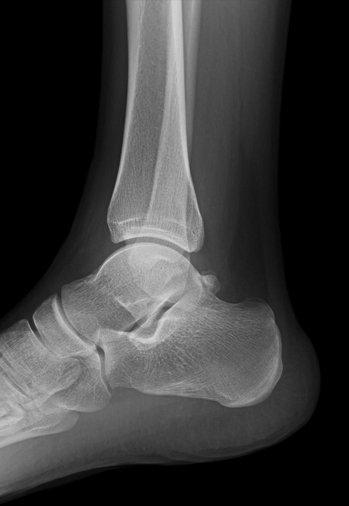Radiografía de tobillo