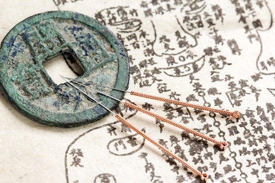 origen de la acupuntura