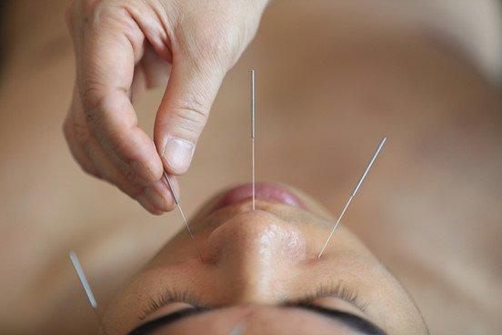 acupuntura origen