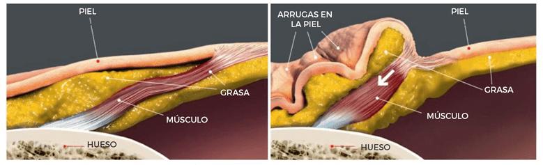 acción del músculo sobre la piel