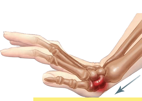 Lesión de escafoides