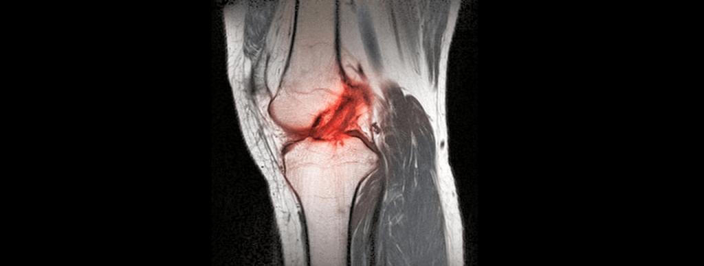 Lesion de ligamento