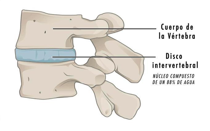Protusión discal