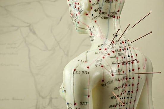 Diferencias entre puntos de acupuntura y puntos gatillo