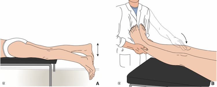 test de recurvatum rodilla