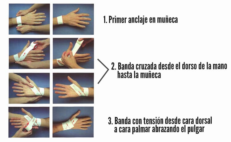 vendaje para dedo pulgar