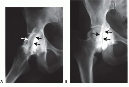Radiografia cadera en resorte