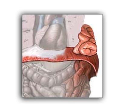 Hernia-diafragma