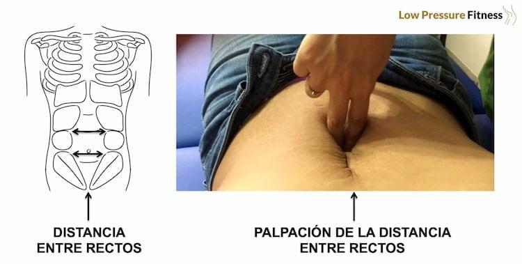 diagnóstico diástasis abdominal