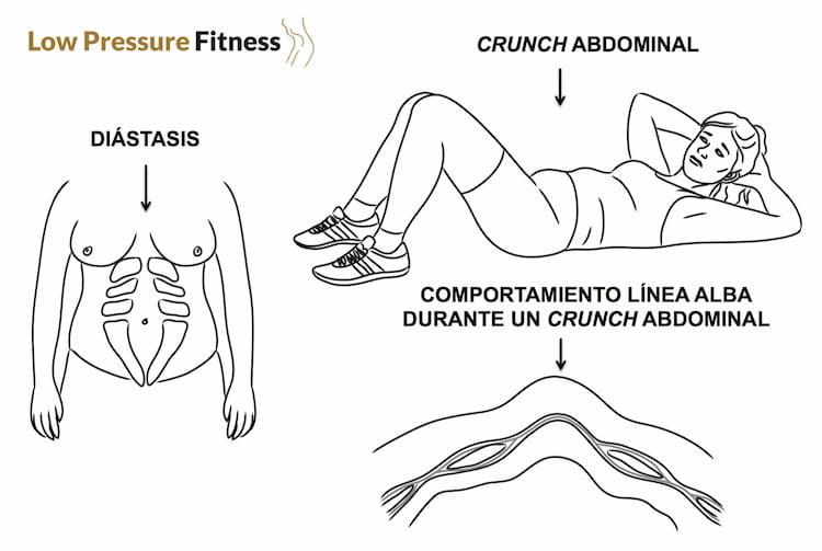 diastasis recto abdominal anterior