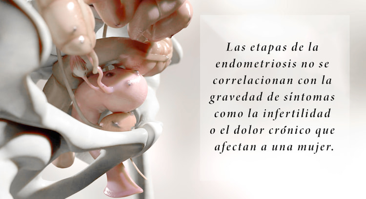diagnostico endometriosis