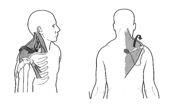 hombros adelantados