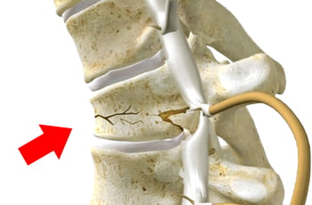 Foto de vértebra dañada