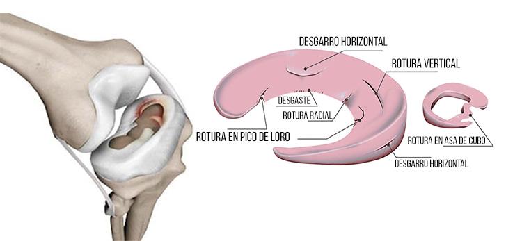 Rotura menisco interno