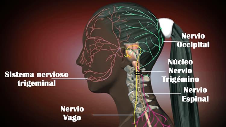 cefalea cervicogénica